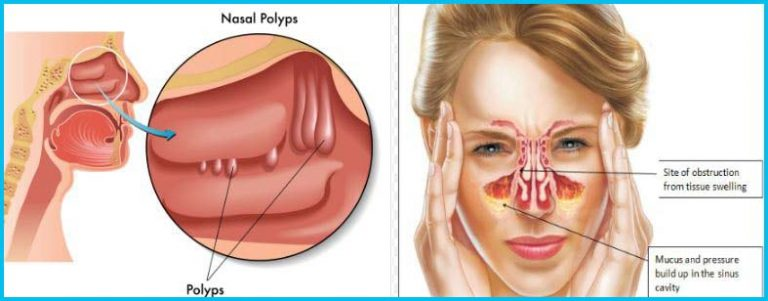 what causes stuffy nose