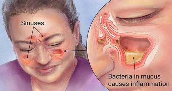 are sinus infections contagious after starting antibiotics