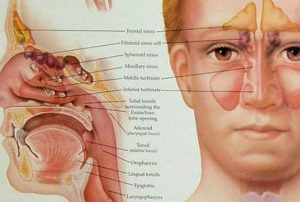 how to relieve sinus pressure homeopathically
