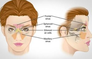 how to get rid of a sinus infection fast without antibiotics