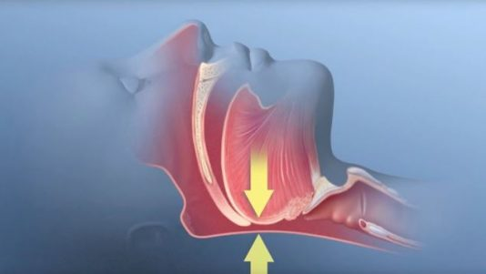 What are the side effects of sleep apnea surgery