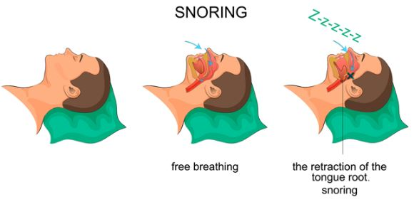 Reasons for snoring