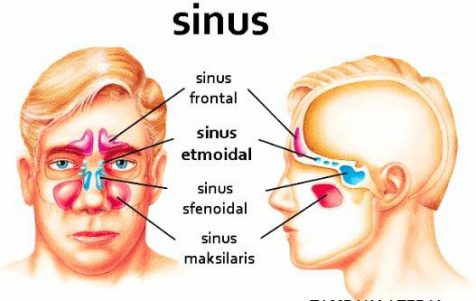 how to relieve a sinus infection at home