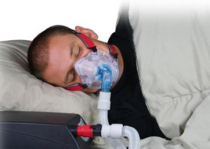 obstructive sleep apnea management guidelines