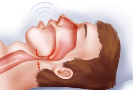 what is obstructive sleep apnea pathophysiologic and therapeutic implications