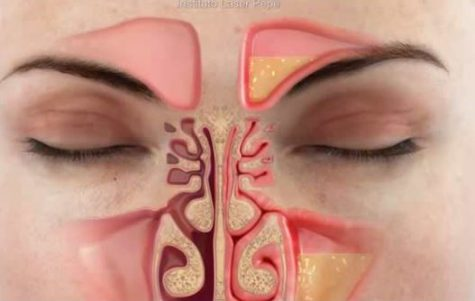 How to cure sinus infection permanently